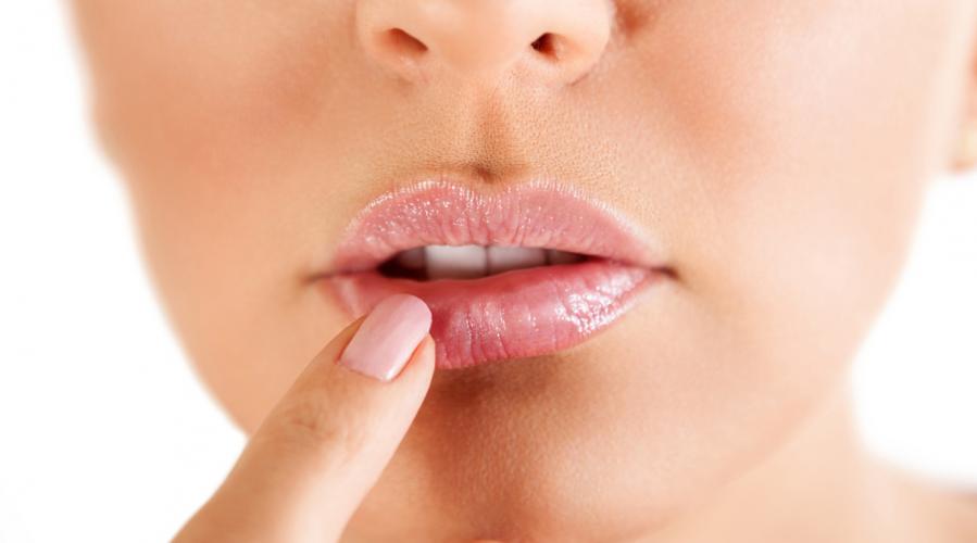 3c7123d04418 Bouton de fièvre   remèdes naturels pour faire disparaître l herpès ...